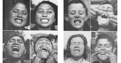 зубной кариес вестон прайс